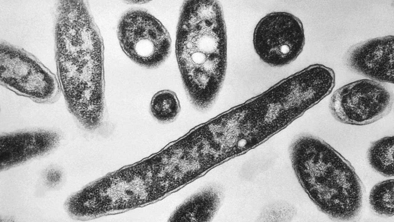 4 Dead From Legionnaires' Disease Linked To Hot Tub Display At NC State Fair