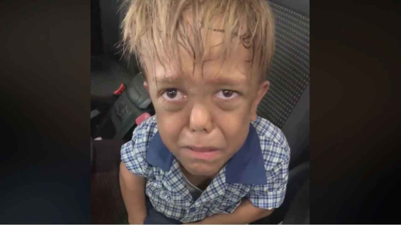 Mother Posts Heartbreaking Video Of Son With Dwarfism Sobbing After Being Bullied: 'I'm Going To Kill Myself'