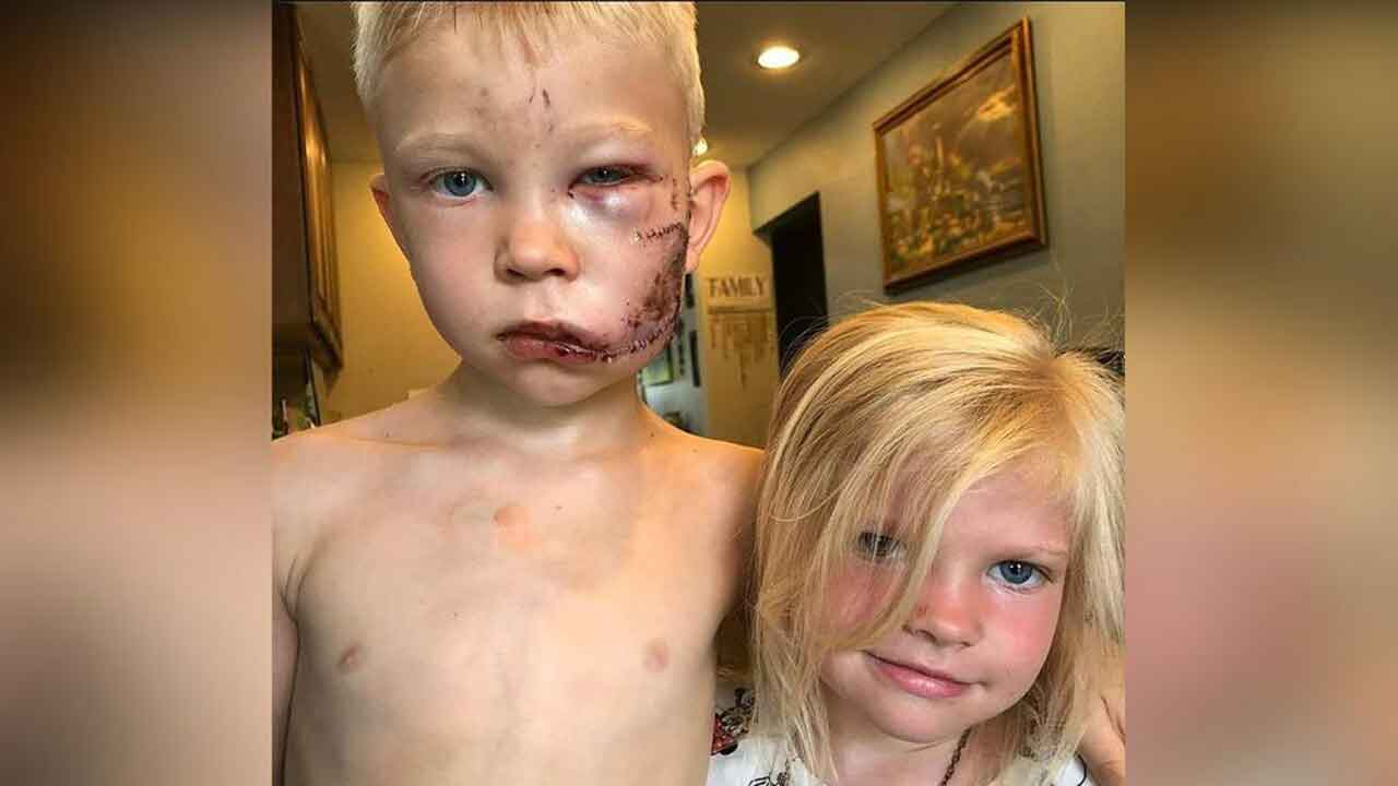 Celebrities Hail 6-Year-Old As Hero After Aunt Says He Saved His Sister From Dog Attack